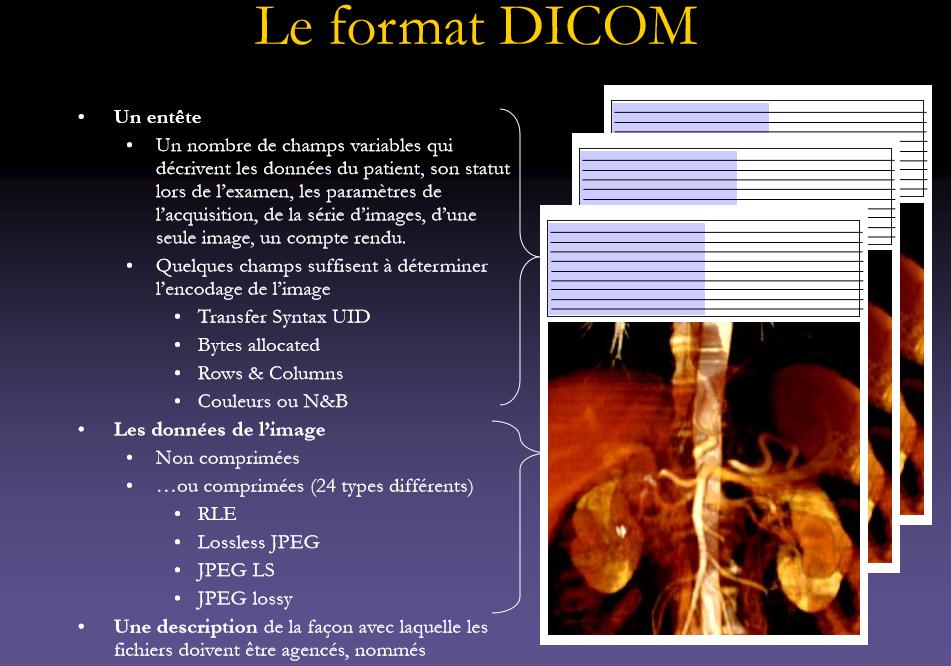 Format Dicom