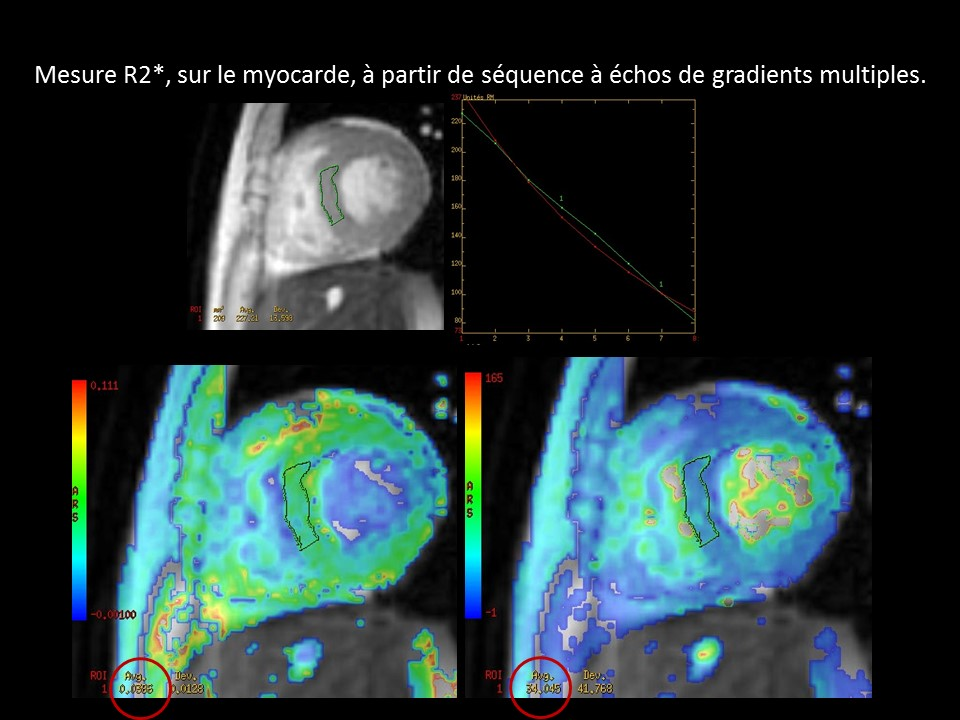 Myocarde - MFGRE