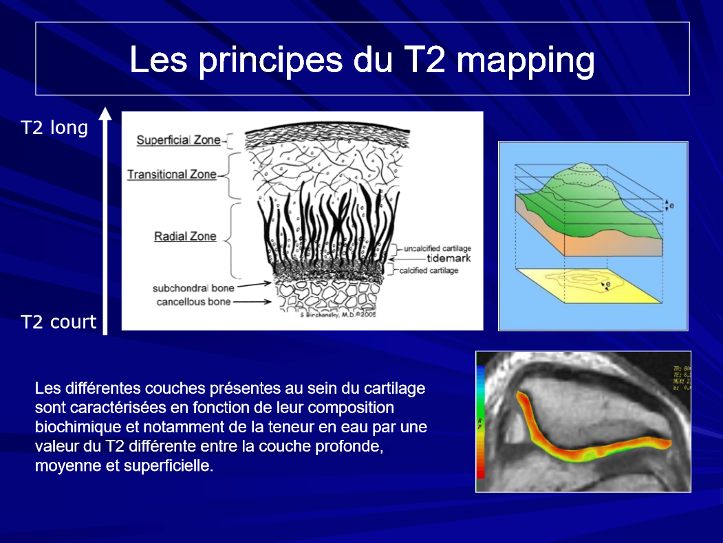 principe_T2_Mapping