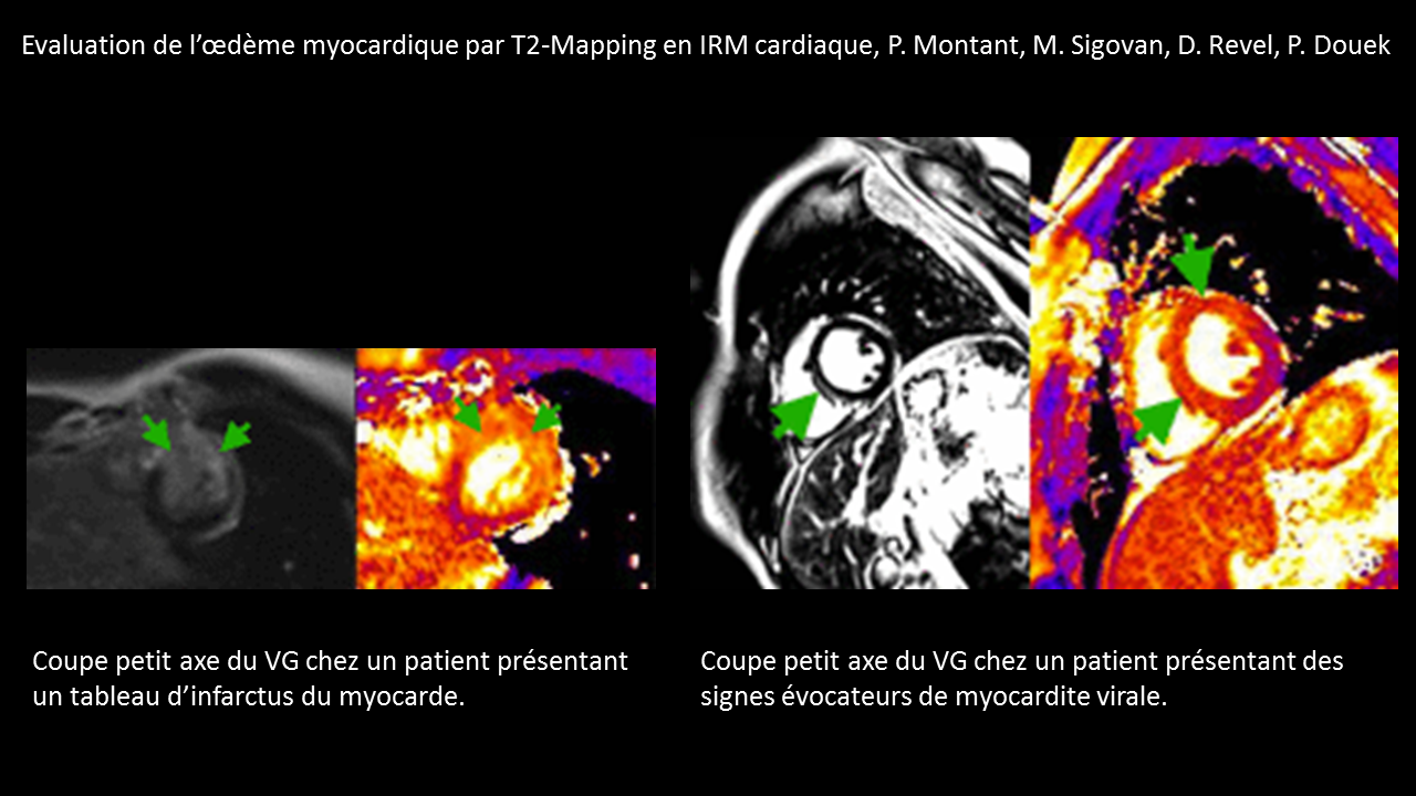 T2-Mapping Myocarde.png